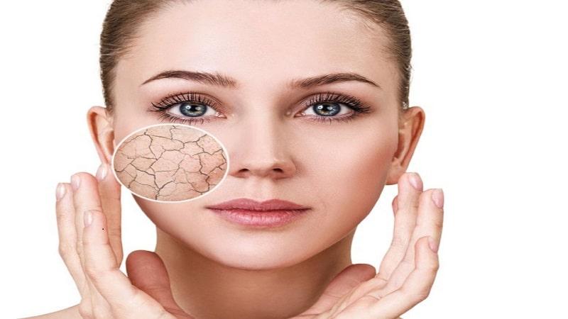 راه های سریع درمان پوست خشک